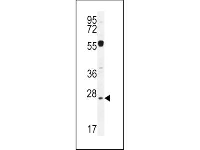 NPS3A Antibody (Center)