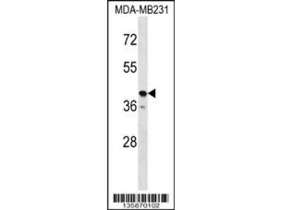 TAS2R31 Antibody (C-term)