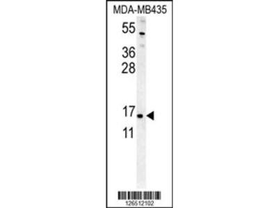 ENY2 Antibody (N-term)