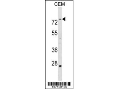ABLIM3 Antibody (C-term)