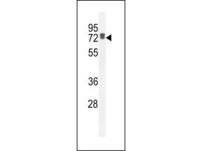 LRC40 Antibody (C-term)