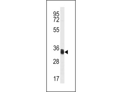 TMX1 Antibody (C-term)