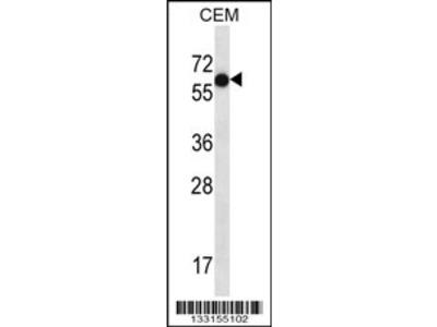 TFAP2B Antibody (C-term)