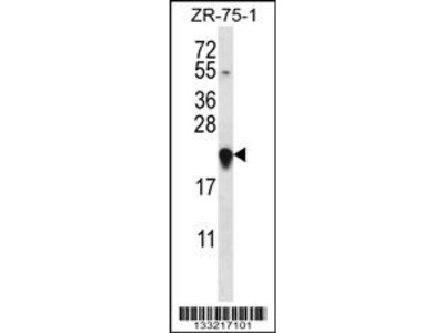 GAGE12H Antibody (N-term)