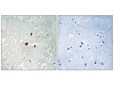 TIFIA antibody (Ser649)