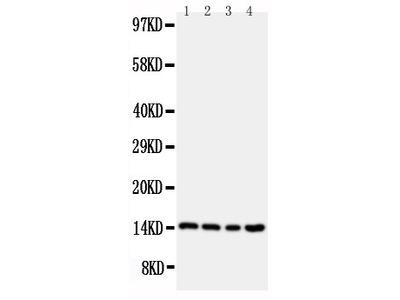 Anti-Stefin B antibody