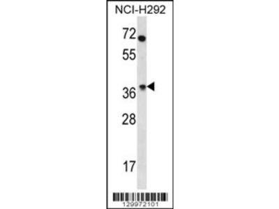 OR4N2 Antibody (N-term)