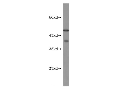 GABPB1 Antibody