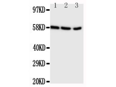 Anti-Aromatase antibody