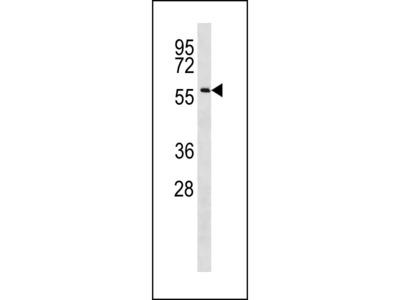 CCDC155 Antibody (Center)