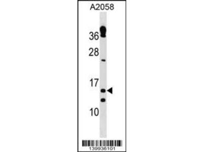 TXNRD3IT1 Antibody (C-term)