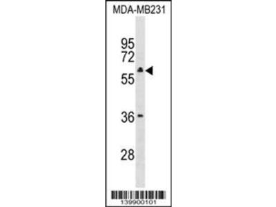 TBC1D10A Antibody (Center)