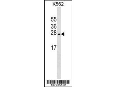 LZIC Antibody (Center)