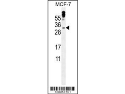 MBD3L3 Antibody (C-term)