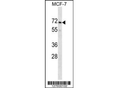 PRAMEF2 Antibody (C-term)