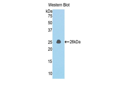 Polyclonal Antibody to Coiled Coil Domain Containing Protein 80 (CCDC80)