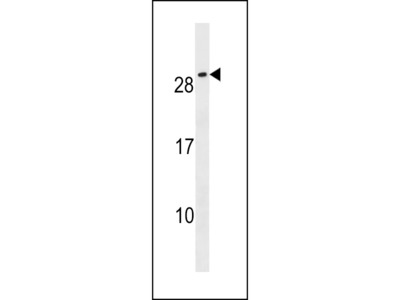CFC1B Antibody (N-term)