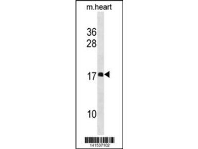 DAPL1 Antibody (N-term)