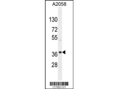 NKAPL Antibody (C-term)