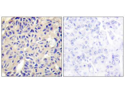 Collagen V alpha 2 antibody