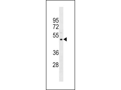 PRAMEF11 Antibody (Center)