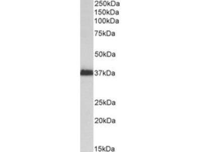 Goat anti-MSI2 / musashi-2 Antibody