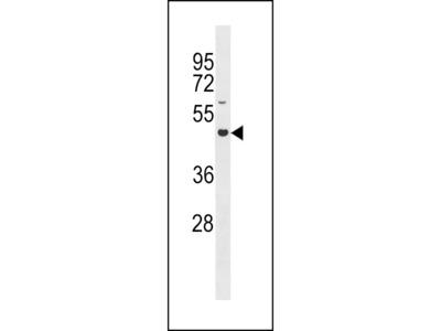 GLT8D4 Antibody (C-term)