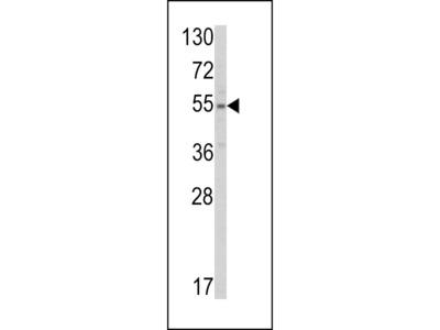 SLC38A3 Antibody (Center)