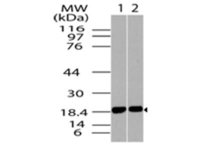ACP1 Polyclonal Antibody