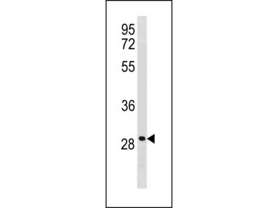 LRRC61 Antibody (Center)