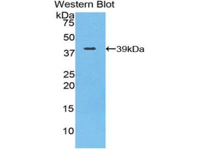 Polyclonal Antibody to Complement Component 3 (C3)