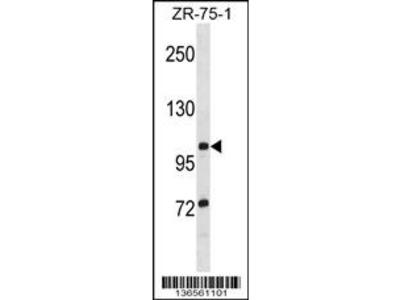 TTLL8 Antibody (N-term)