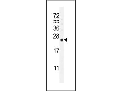 GAGE12B Antibody (N-term)