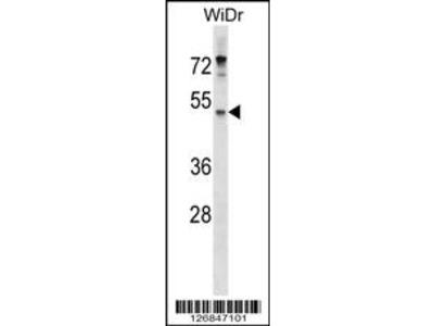 ENPP4 Antibody (Center)