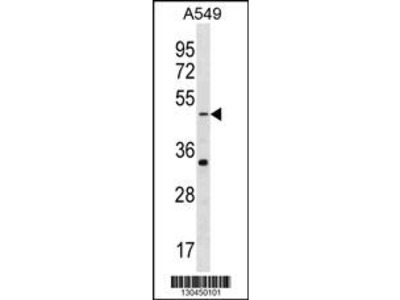 GABRR2 Antibody (N-term)