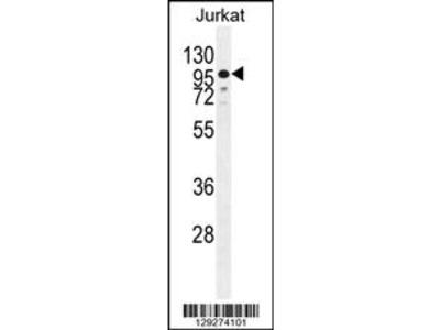 ZNF841 Antibody (N-term)