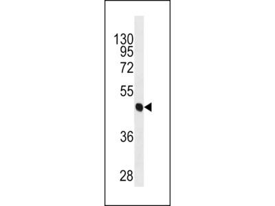 CYK18 Antibody (C-term) (Ascites)