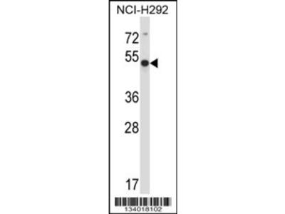 ACTR6 Antibody (C-term)