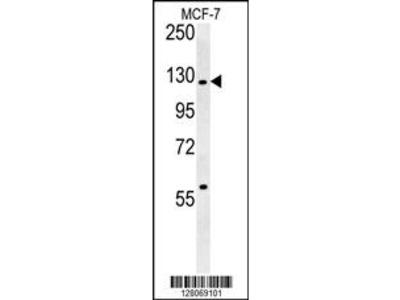 RABGAP1 Antibody (N-term)