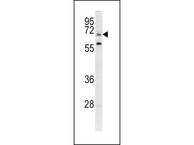 GARP Antibody (Center)