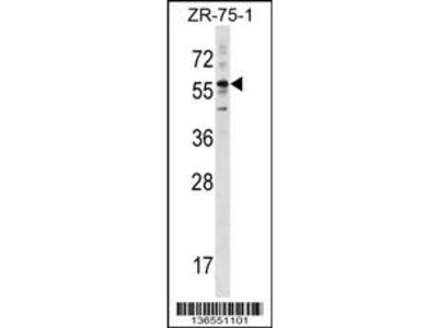 KRT3 Antibody (Center)