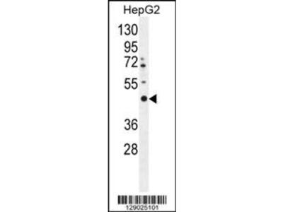 LRTM2 Antibody (C-term)
