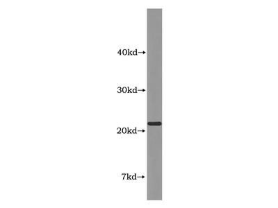 ABHD14B Antibody