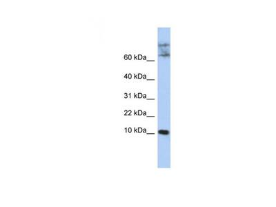 CKLF antibody