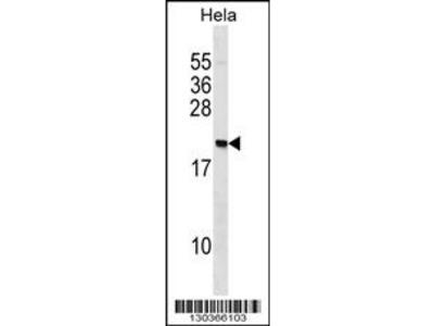 PAIP2 Antibody (N-term)