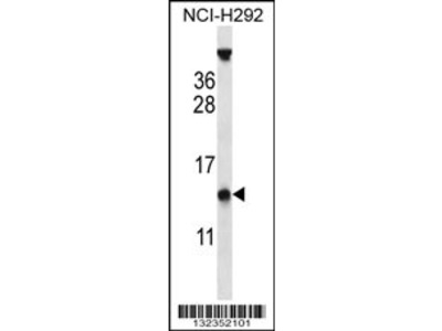 PYDC1 Antibody (Center)