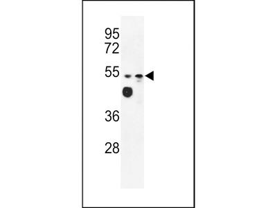 MALD2 Antibody (C-term)