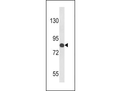 COMP Antibody (Center)