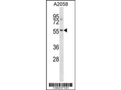 NACC2 Antibody (C-term)