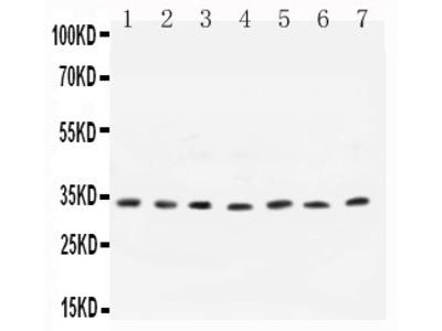 Anti- Cyclin D1 antibody